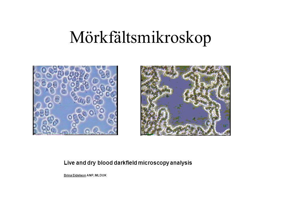 Mörkfältsmikroskop Live and dry blood darkfield microscopy analysis Brina Eidelson ANP, MLDUK