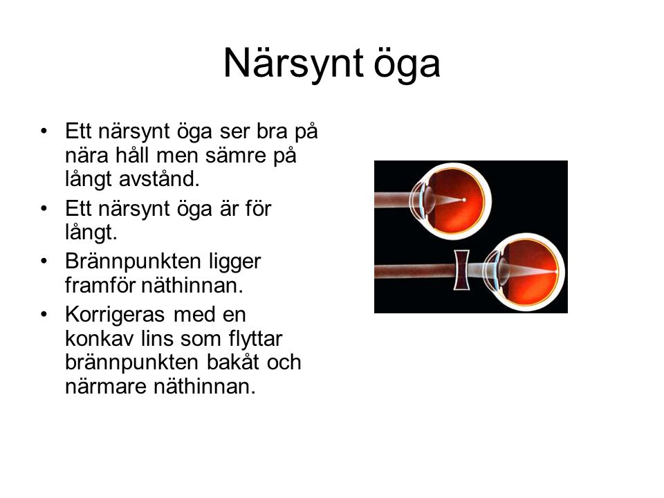 Närsynt öga Ett närsynt öga ser bra på nära håll men sämre på långt avstånd. Ett närsynt öga är för långt. Brännpunkten ligger framför näthinnan. Korr
