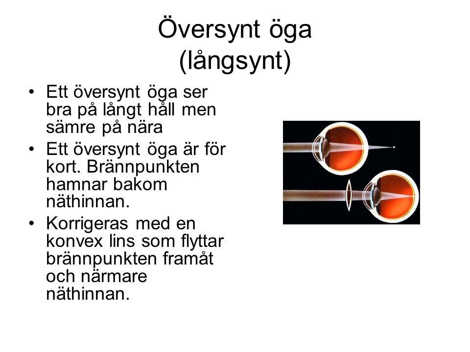 Översynt öga (långsynt) Ett översynt öga ser bra på långt håll men sämre på nära Ett översynt öga är för kort. Brännpunkten hamnar bakom näthinnan. Ko