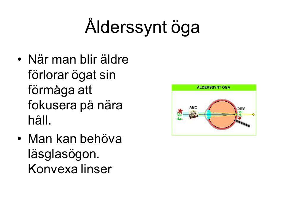 Ålderssynt öga När man blir äldre förlorar ögat sin förmåga att fokusera på nära håll. Man kan behöva läsglasögon. Konvexa linser