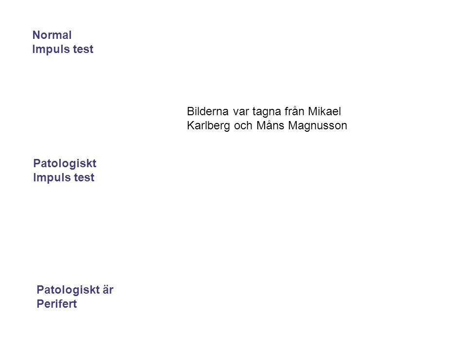 Patologiskt Impuls test Normal Impuls test Patologiskt är Perifert Bilderna var tagna från Mikael Karlberg och Måns Magnusson