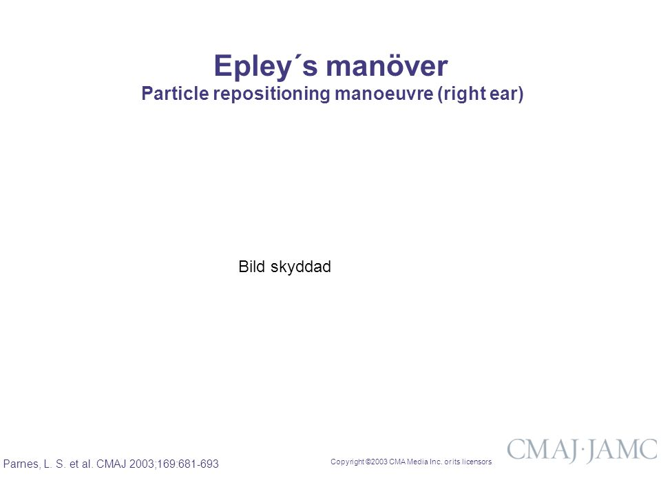 Copyright ©2003 CMA Media Inc. or its licensors Parnes, L. S. et al. CMAJ 2003;169:681-693 Particle repositioning manoeuvre (right ear) Epley´s manöve