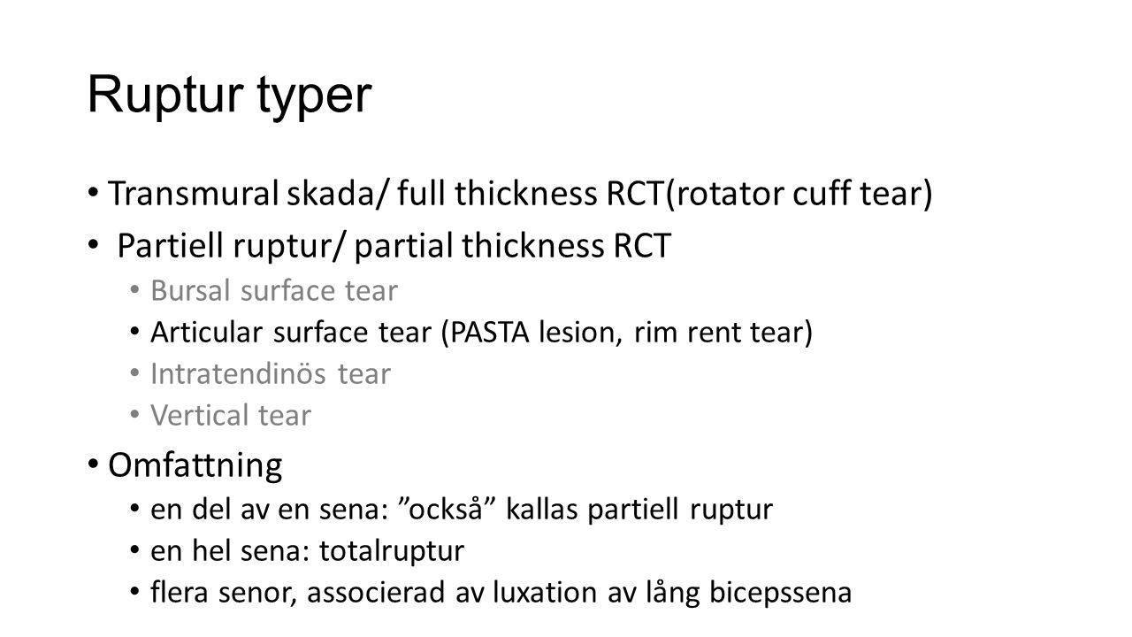Ruptur typer Transmural skada/ full thickness RCT(rotator cuff tear) Partiell ruptur/ partial thickness RCT Bursal surface tear Articular surface tear