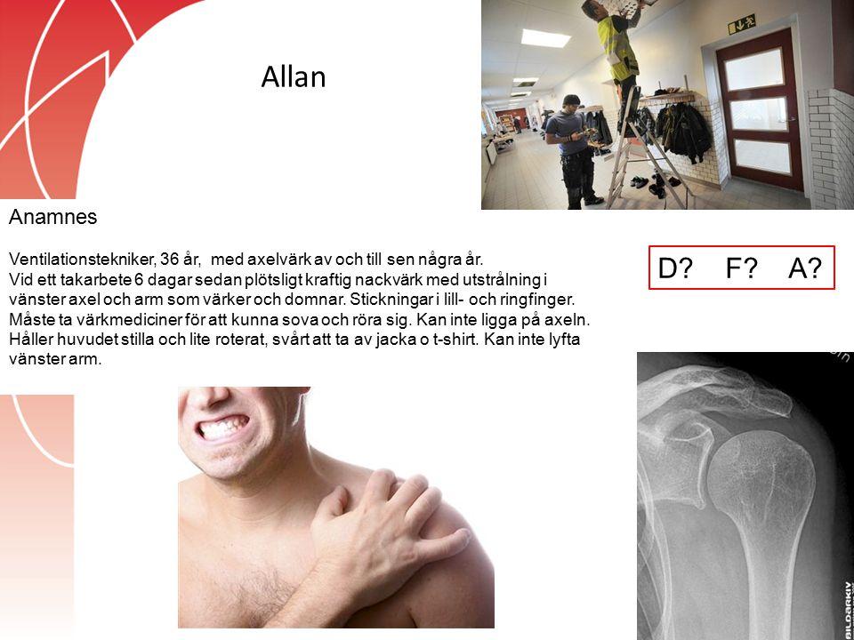 Allan Anamnes Ventilationstekniker, 36 år, med axelvärk av och till sen några år. Vid ett takarbete 6 dagar sedan plötsligt kraftig nackvärk med utstr