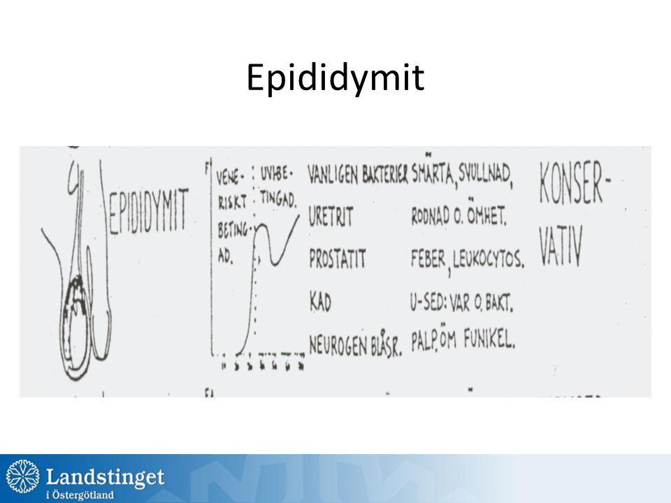 Epididymit
