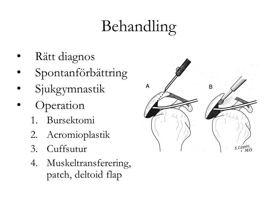 Behandling Rätt diagnos Spontanförbättring Sjukgymnastik Operation 1.Bursektomi 2.Acromioplastik 3.Cuffsutur 4.Muskeltransferering, patch, deltoid flap