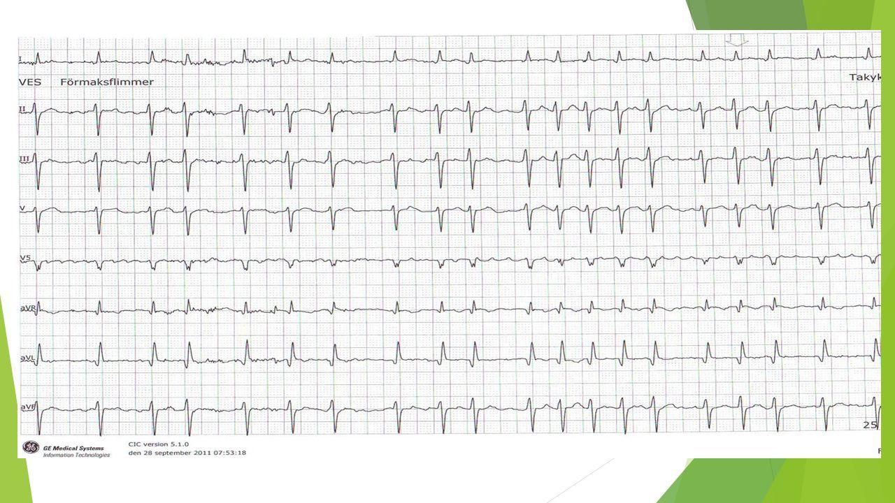 HAS-BLED  Riskcore för blödning  Ökad blödningsrisk vid score ≥3 Studie: A novel userfriendly score (HAS-BLED) to assess 1-year risk of major bleeding in patients with atrial fibrillation: the Euro Heart Survey.