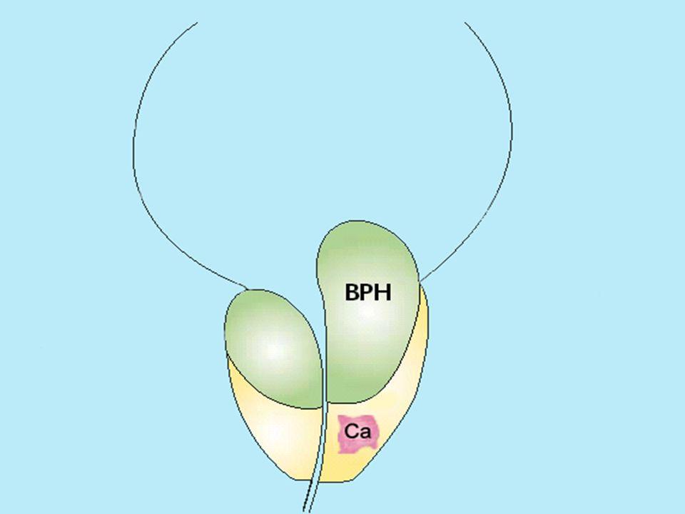 Kropps- vikt Kropps-längd Arterioskleros Behandlad hypertoni Type 2 diabetes HDL cholesterol Urinsyra Insulin Vitamin D BMI Lean Body mass Östrogen Fritt Östrogen testosteron/ östrogen kvot SHBG Bukmått Höftmått Systoliskt blodtryck Adiponektin Buk/höft mått Sammanfattning 22 av 24 etablerade komponenter i det metabola syndromet är riskfaktorer för BPH Diastoliskt blodtryck ALAT
