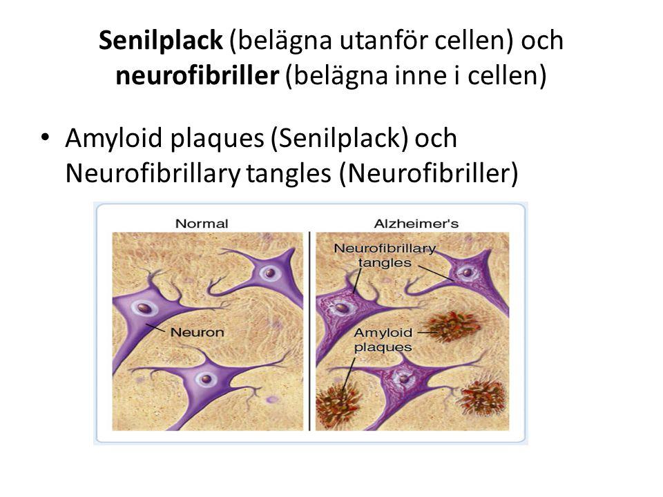 Senilplack (belägna utanför cellen) och neurofibriller (belägna inne i cellen) Amyloid plaques (Senilplack) och Neurofibrillary tangles (Neurofibrille