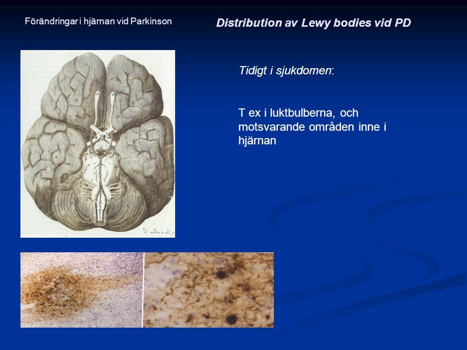 Tidigt i sjukdomen: T ex i luktbulberna, och motsvarande områden inne i hjärnan Distribution av Lewy bodies vid PD Förändringar i hjärnan vid Parkinso