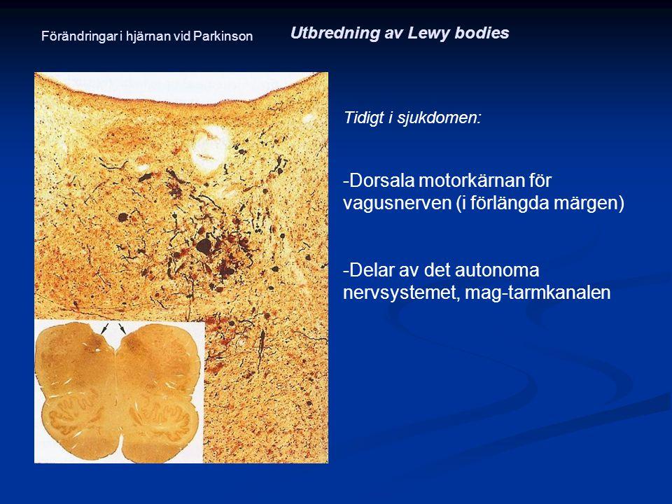 Tidigt i sjukdomen: -Dorsala motorkärnan för vagusnerven (i förlängda märgen) -Delar av det autonoma nervsystemet, mag-tarmkanalen Utbredning av Lewy