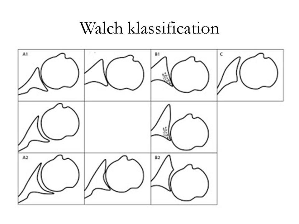 Walch klassification
