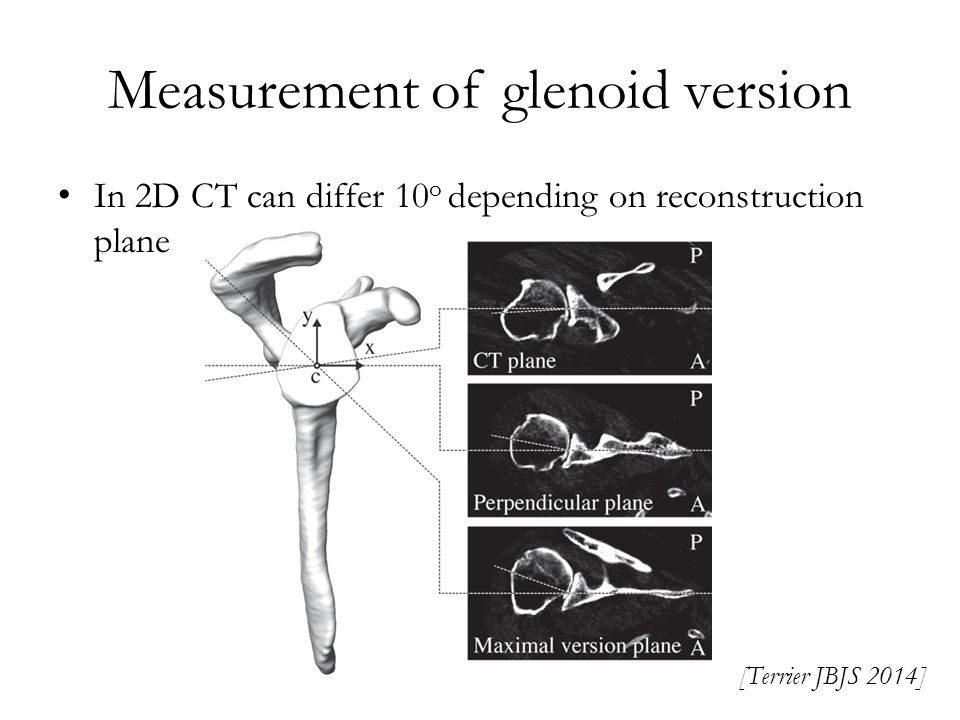 Measurement of glenoid version In 2D CT can differ 10 o depending on reconstruction plane [Terrier JBJS 2014]