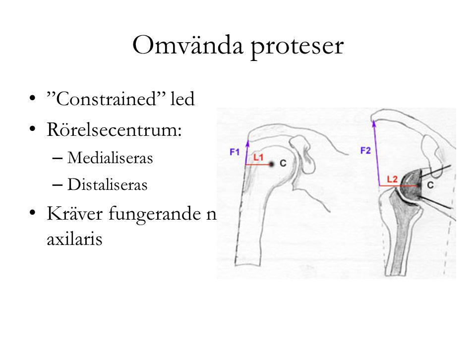 """Omvända proteser """"Constrained"""" led Rörelsecentrum: – Medialiseras – Distaliseras Kräver fungerande n axilaris"""