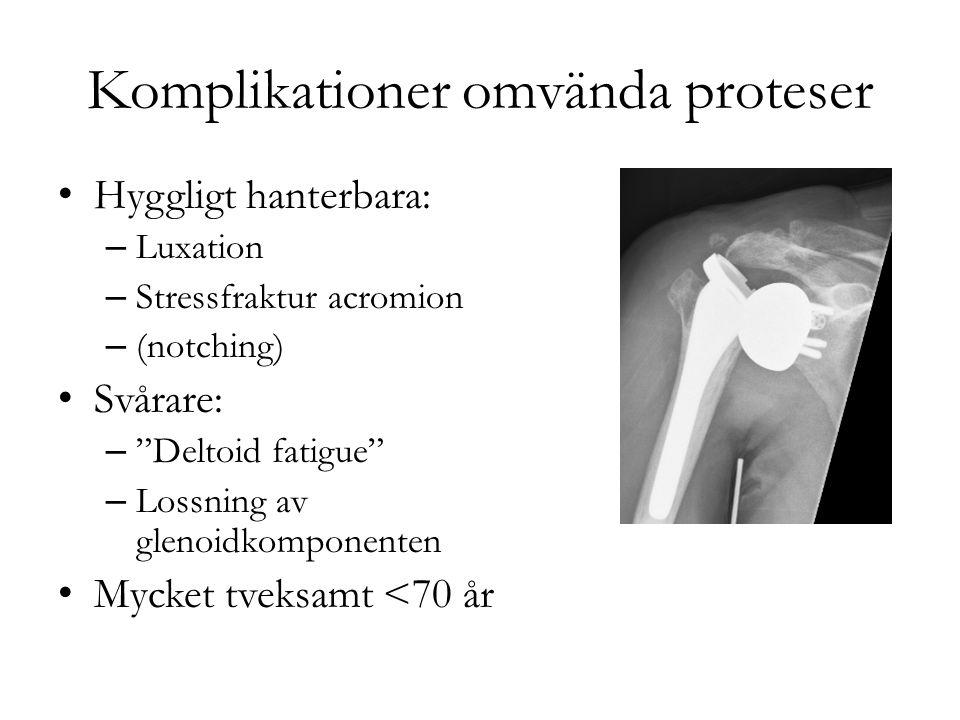 """Komplikationer omvända proteser Hyggligt hanterbara: – Luxation – Stressfraktur acromion – (notching) Svårare: – """"Deltoid fatigue"""" – Lossning av gleno"""