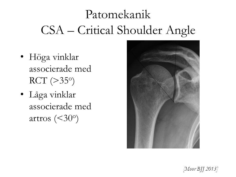 Patomekanik CSA – Critical Shoulder Angle Höga vinklar associerade med RCT (>35 o ) Låga vinklar associerade med artros (<30 o ) [Moor BJJ 2013]