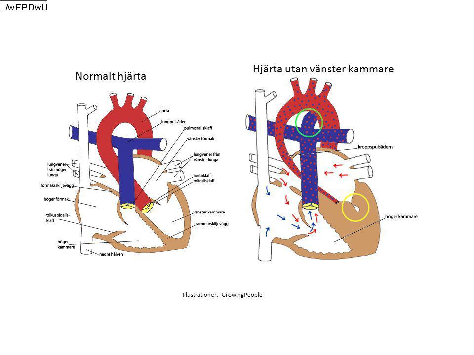 Normalt hjärta Hjärta utan vänster kammare Illustrationer: GrowingPeople