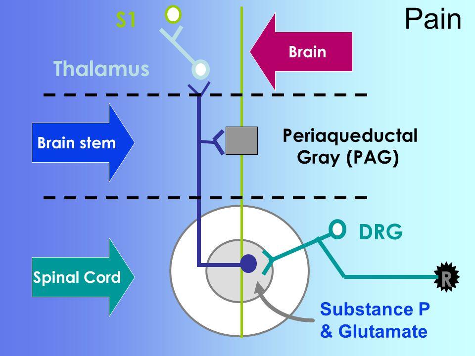 Pain Thalamus S1 DRG R Substance P & Glutamate Spinal Cord Brain stem Brain Periaqueductal Gray (PAG)