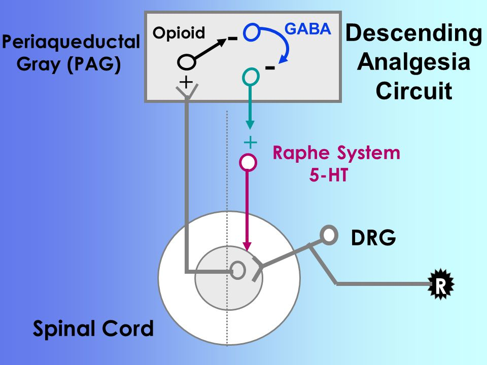 Spinal Cord DRG R Periaqueductal Gray (PAG) - Opioid + GABA - Descending Analgesia Circuit Raphe System 5-HT +