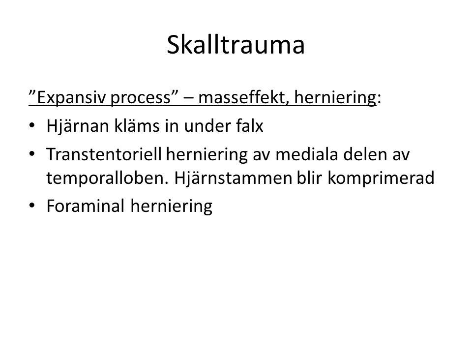 Skalltrauma Expansiv process – masseffekt, herniering: Hjärnan kläms in under falx Transtentoriell herniering av mediala delen av temporalloben.