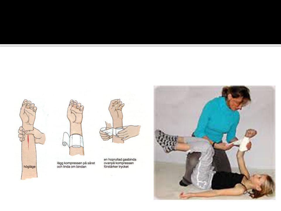  Man kan lindra smärtan genom att spola den skadade huden med svalt vatten direkt efter att man har bränt sig, men spola inte längre än 15 minuter.