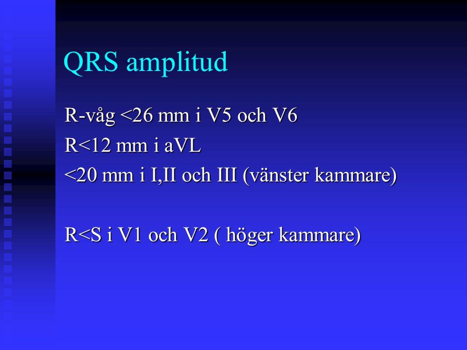 QRS amplitud R-våg <26 mm i V5 och V6 R<12 mm i aVL <20 mm i I,II och III (vänster kammare) R<S i V1 och V2 ( höger kammare)