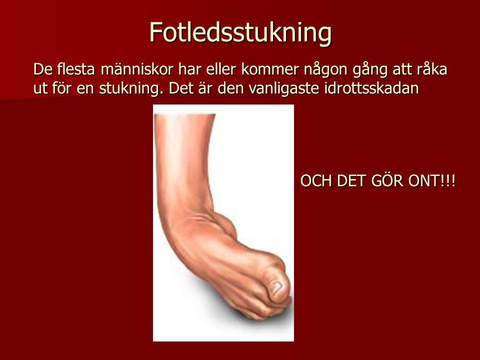 Fotledsstukning De flesta människor har eller kommer någon gång att råka ut för en stukning. Det är den vanligaste idrottsskadan OCH DET GÖR ONT!!!