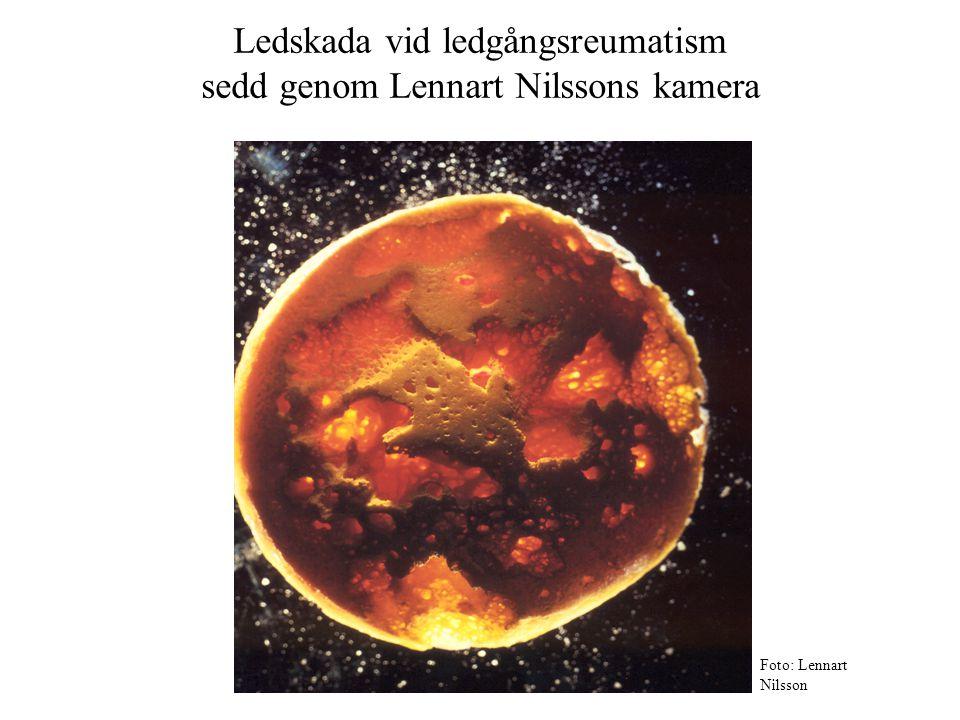 Ledskada vid ledgångsreumatism sedd genom Lennart Nilssons kamera Foto: Lennart Nilsson