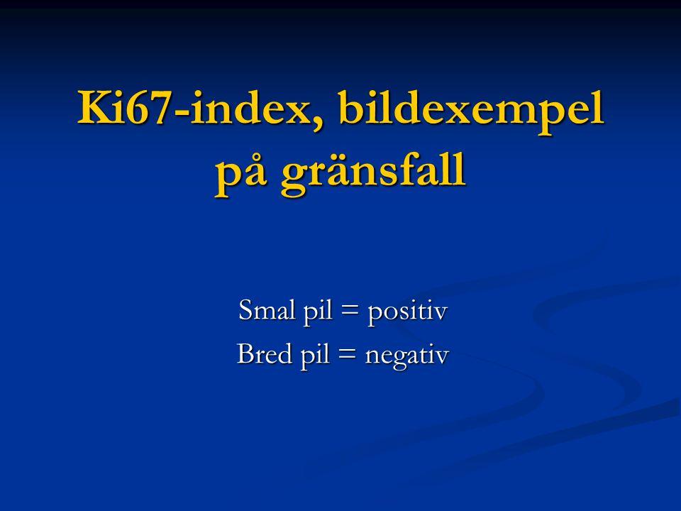 Ki67-index, bildexempel på gränsfall Smal pil = positiv Bred pil = negativ