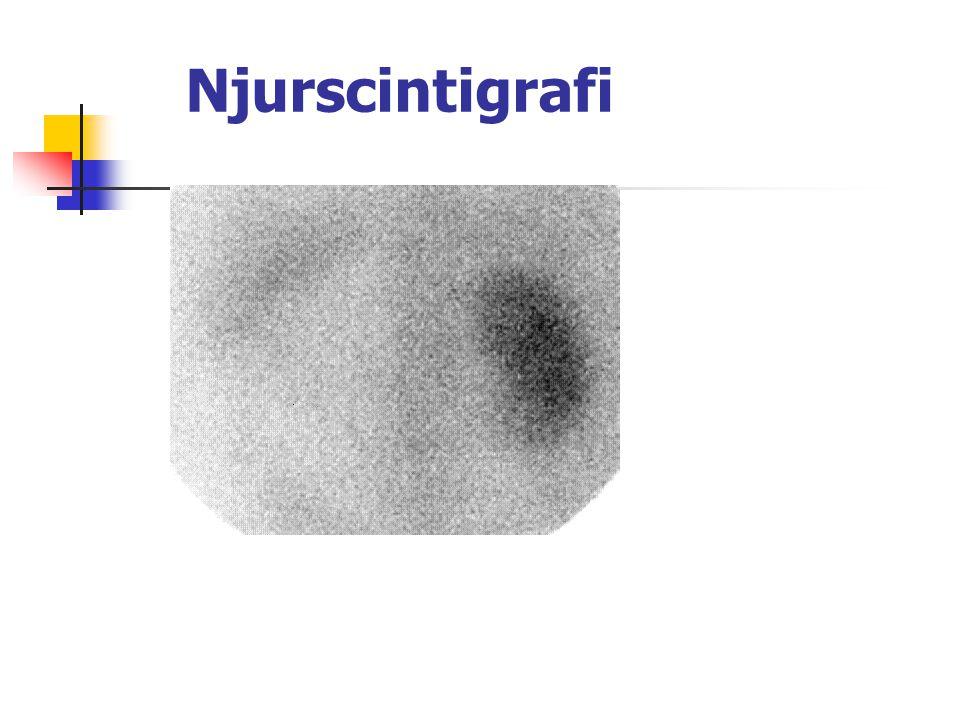 Godartad prostataförstoring (forts.) Utredning: Ultraljud; cystoskopi; flödesmätning; PSA; ev.