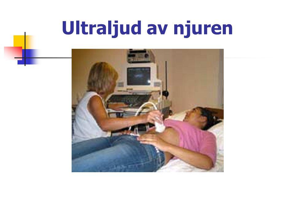 Kirurgiska sjukdomar i njurar, urinvägar, prostata (forts.) Prostatacancer.
