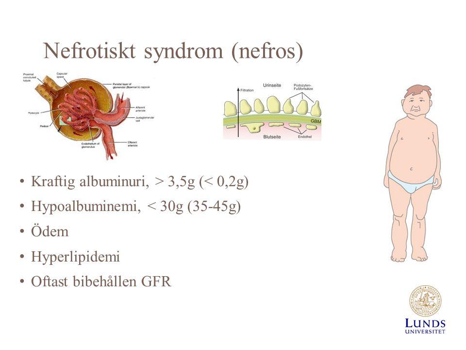 Nefrotiskt syndrom (nefros) Kraftig albuminuri, > 3,5g (< 0,2g) Hypoalbuminemi, < 30g (35-45g) Ödem Hyperlipidemi Oftast bibehållen GFR