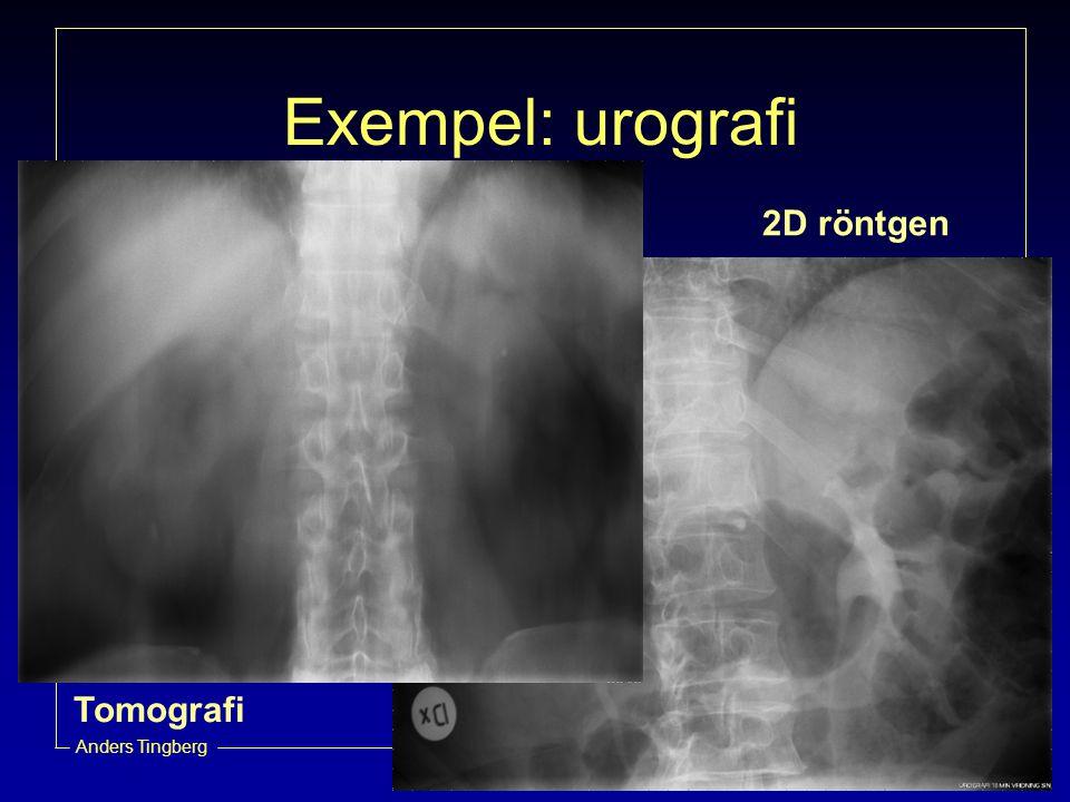 Radiofysikavdelningen, UMAS Anders Tingberg Exempel: urografi 2D röntgen Tomografi