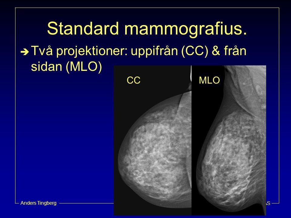 Radiofysikavdelningen, UMAS Anders Tingberg Mammografi  Att finna tumörer så tidigt som möjligt  Små tumörer med liten kontrast  Relativt låg sensitivitet (70-80%)  Speciellt svårt med täta bröst –76% av alla missade fall i täta bröst (Holland et al.