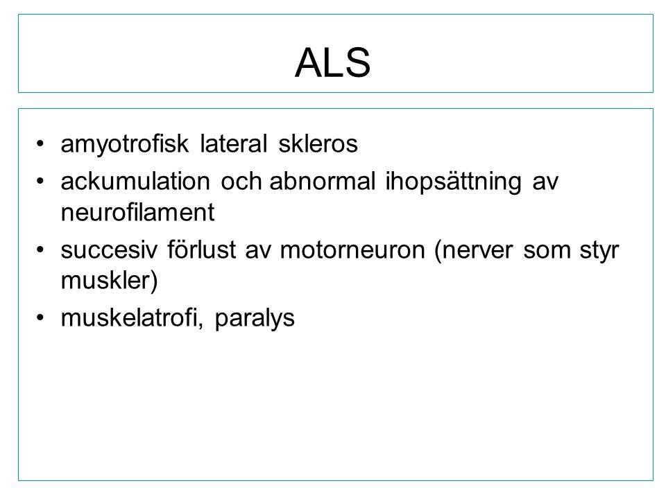 ALS amyotrofisk lateral skleros ackumulation och abnormal ihopsättning av neurofilament succesiv förlust av motorneuron (nerver som styr muskler) musk