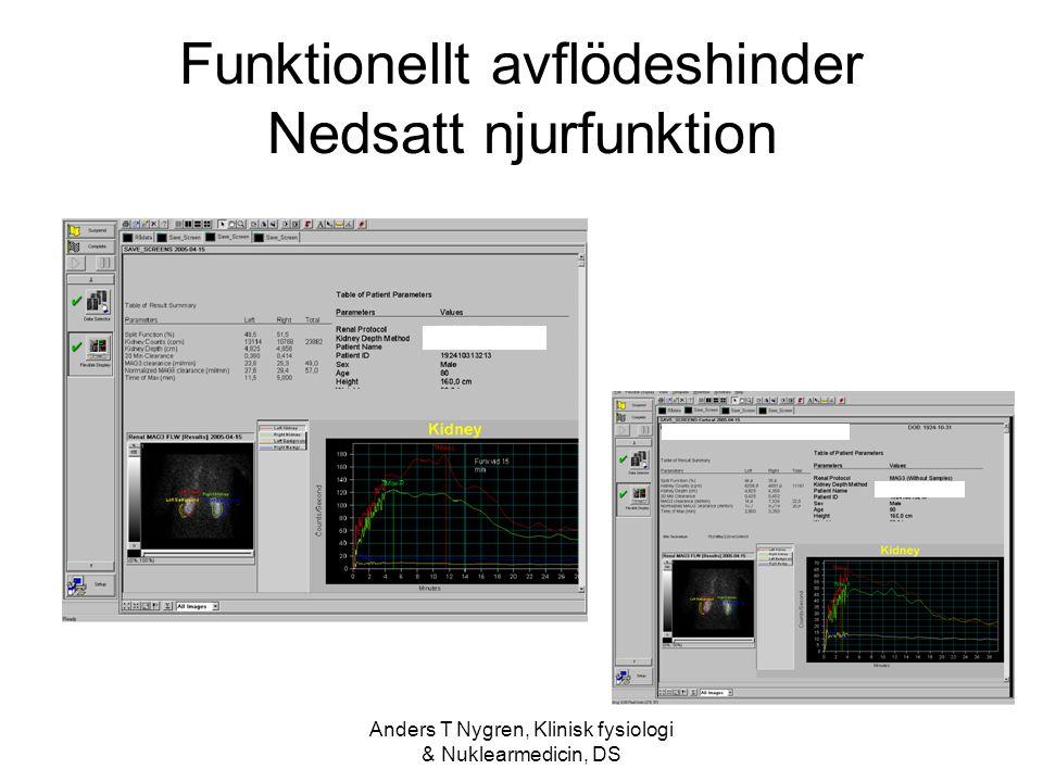 Anders T Nygren, Klinisk fysiologi & Nuklearmedicin, DS Funktionellt avflödeshinder Nedsatt njurfunktion