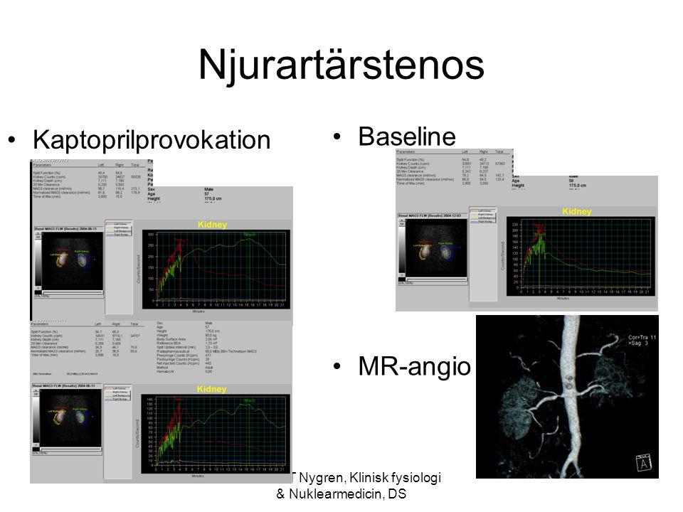 Anders T Nygren, Klinisk fysiologi & Nuklearmedicin, DS Njurartärstenos Kaptoprilprovokation Baseline MR-angio HÖ