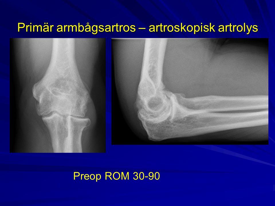 Primär armbågsartros – artroskopisk artrolys Preop ROM 30-90