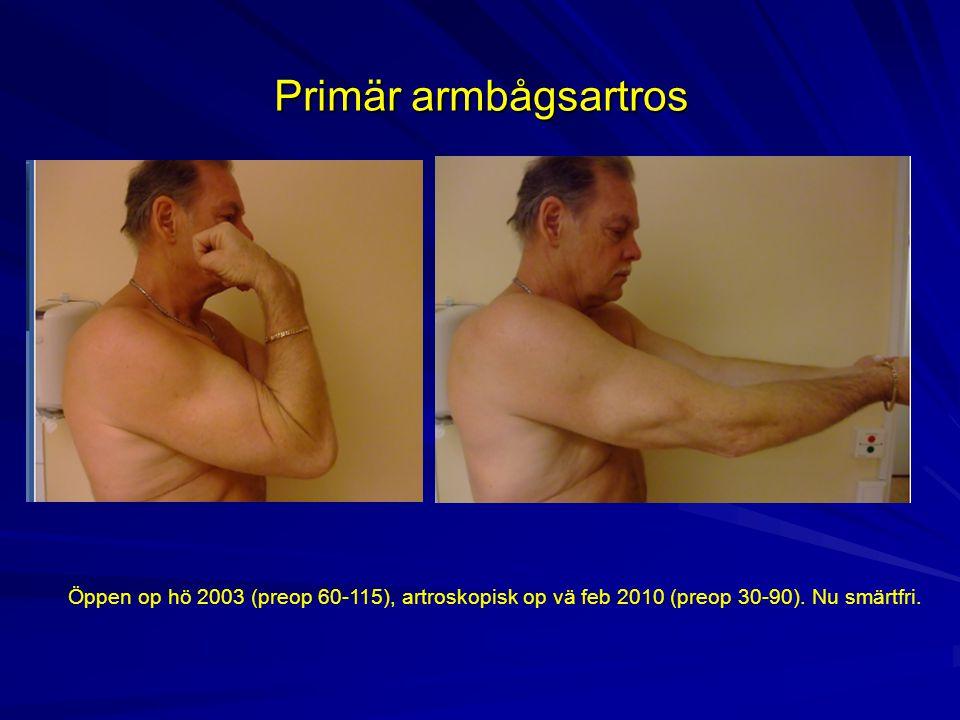 Primär armbågsartros Öppen op hö 2003 (preop 60-115), artroskopisk op vä feb 2010 (preop 30-90). Nu smärtfri.