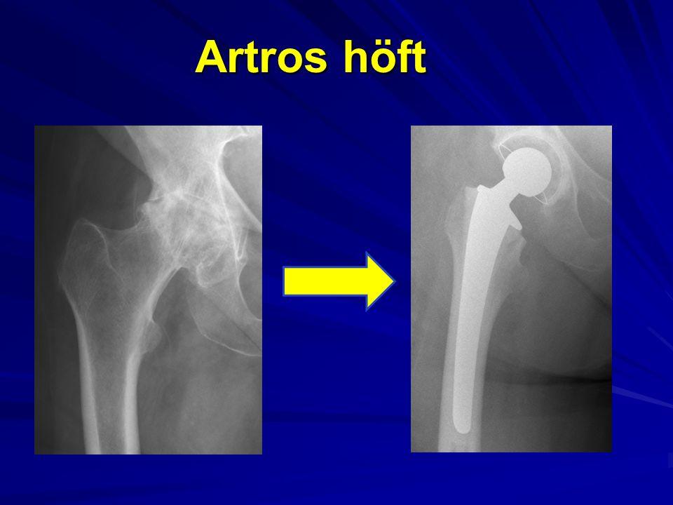 Artros höft