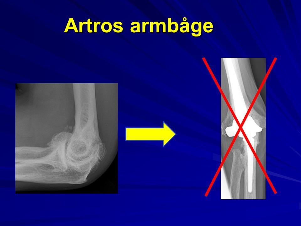 Armbågsprotesregistret 1999-2013 Totalt 1171 proteser RA 59% Fraktur 25 % Artros 1,6 % (19 st)
