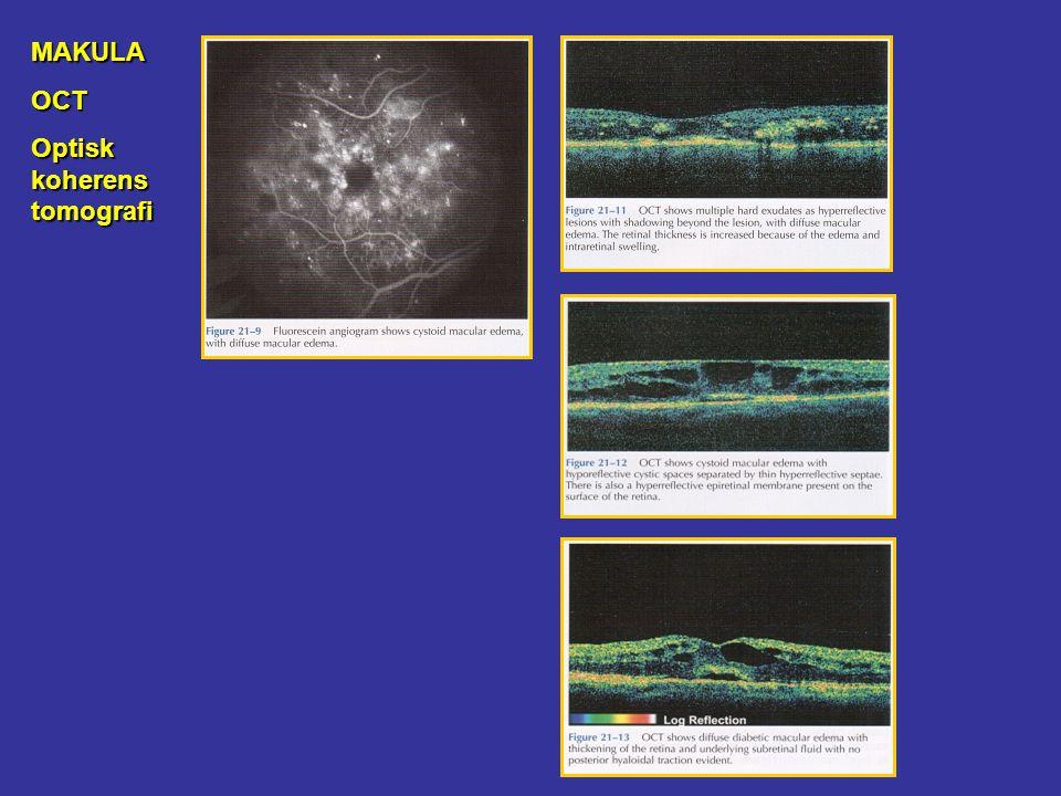 MAKULAOCT Optisk koherens tomografi