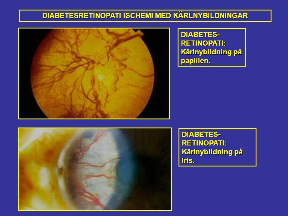 DIABETES-RETINOPATI: Kärlnybildning på papillen.DIABETES-RETINOPATI: Kärlnybildning på iris.