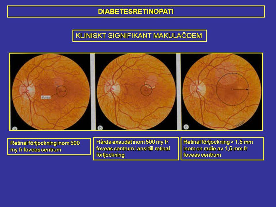 Retinal förtjockning inom 500 my fr foveas centrum Hårda exsudat inom 500 my fr foveas centrum i ansl till retinal förtjockning Retinal förtjockning > 1.5 mm inom en radie av 1,5 mm fr foveas centrum KLINISKT SIGNIFIKANT MAKULAÖDEM DIABETESRETINOPATI