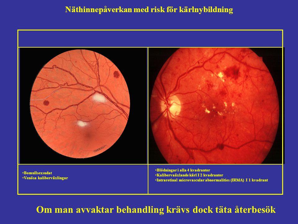 Näthinnepåverkan med risk för kärlnybildning Om man avvaktar behandling krävs dock täta återbesök Bomullsexsudat Venösa kaliberväxlingar Blödningar i alla 4 kvadranter Kalibervaäxlande kärl I 2 kvadranter Intraretinal microvascular abnormalities (IRMA) I 1 kvadrant