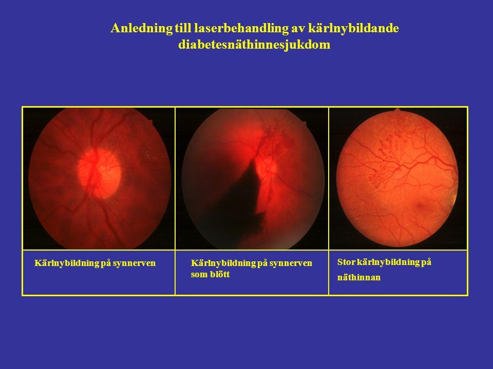 Anledning till laserbehandling av kärlnybildande diabetesnäthinnesjukdom Kärlnybildning på synnervenKärlnybildning på synnerven som blött Stor kärlnybildning på näthinnan