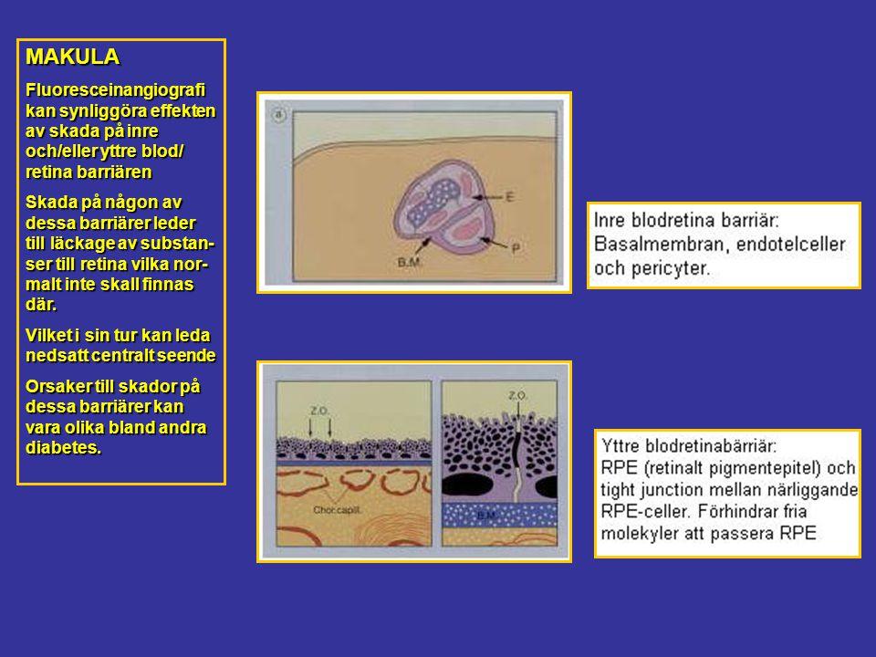 MAKULA Fluoresceinangiografi kan synliggöra effekten av skada på inre och/eller yttre blod/ retina barriären Skada på någon av dessa barriärer leder till läckage av substan- ser till retina vilka nor- malt inte skall finnas där.