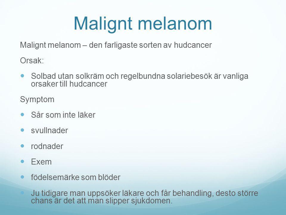 Malignt melanom Malignt melanom – den farligaste sorten av hudcancer Orsak: Solbad utan solkräm och regelbundna solariebesök är vanliga orsaker till h