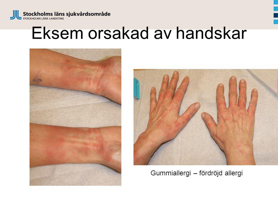 Eksem orsakad av handskar Gummiallergi – fördröjd allergi