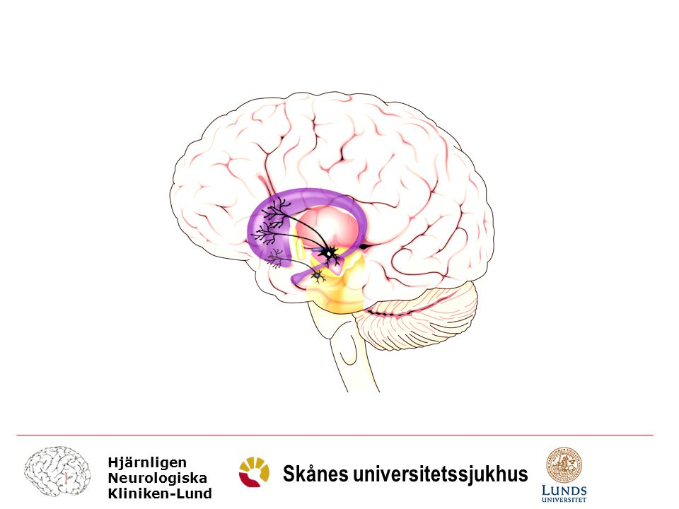 Hjärnligen Neurologiska Kliniken-Lund Skånes universitetssjukhus Glia DA-R 2 family DA-R 1 family Progressiv förlust av presynaptiska dopamin terminaler Icke fokuserad synaps